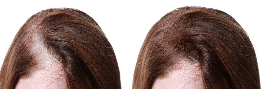 Micro-greffe de cheveux